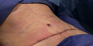 Liposuction mark